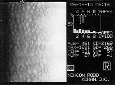 Microscopia endoteliale in paziente con densità cellulare normale