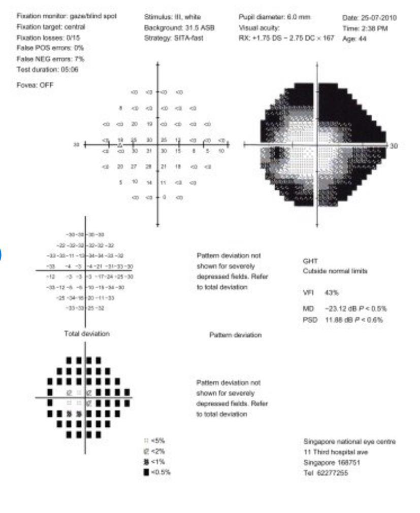 Restringimento tubulare del campo visivo (scotoma anulare).