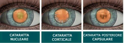 cataratta corticale nucleare posteriore capsulare