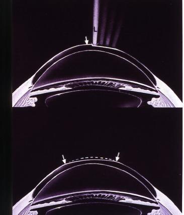 chirurgia frefrattiva, Schema dell'azione laser durante PRK.