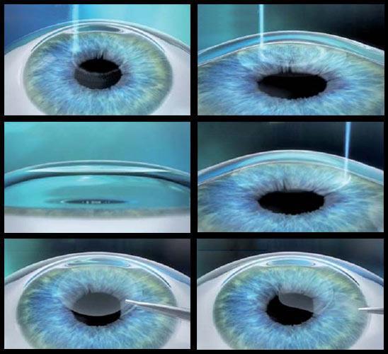 chirurgia refrattiva Schema della procedura SMILE