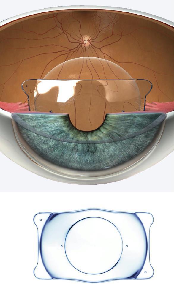 IOL fachica chirurgia refrattiva