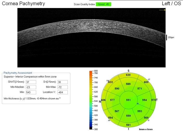 Scansione OCT condotta a livello corneale con misura dello spessore