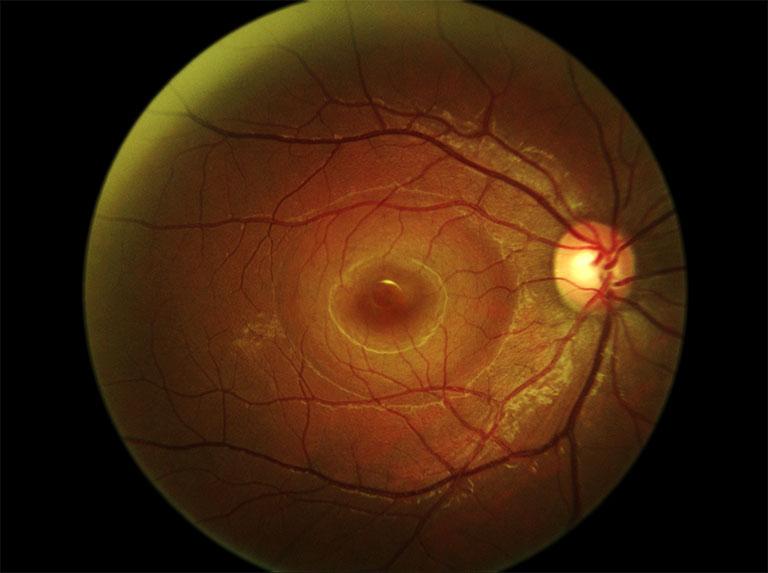 Figura 1 Immagine del fondo oculare con sollevamento sieroso del neuroepitelio a forma ovalare