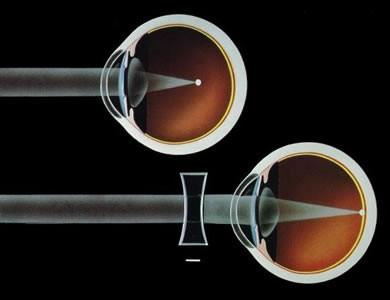 Figura 1: Rappresentazione schematica della miopia; il fuoco dei raggi cade davanti la retina. Lenti correttive concave (negative) diminuiscono la vergenza dei raggi portando il fuoco sulla retina.