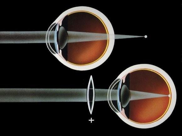Figura 2: Rappresentazione schematica dell'ipermetropia; il fuoco dei raggi è situato dietro la retina.  Lenti correttive convesse (positive) aumentano la vergenza dei raggi portando il fuoco sulla retina.