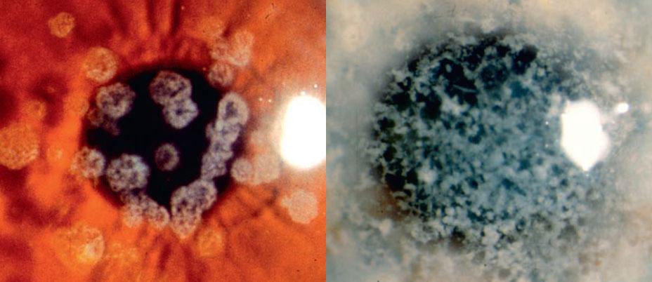 Figura 6 e 7: Distrofia granulare di tipo I (Groenow)