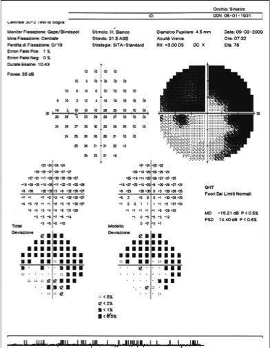 campo visivo in paziente affetto da glaucoma.