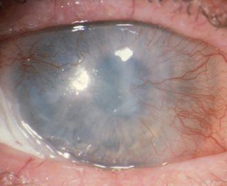 Figura 1 Panno corneale neovascolare in paziente affetto da ustione da alcali