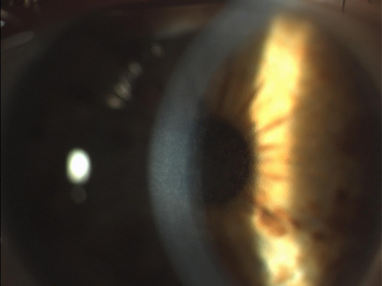 Figura 10: Iniziale edema corneale centrale in Distrofia endoteliale di Fuchs