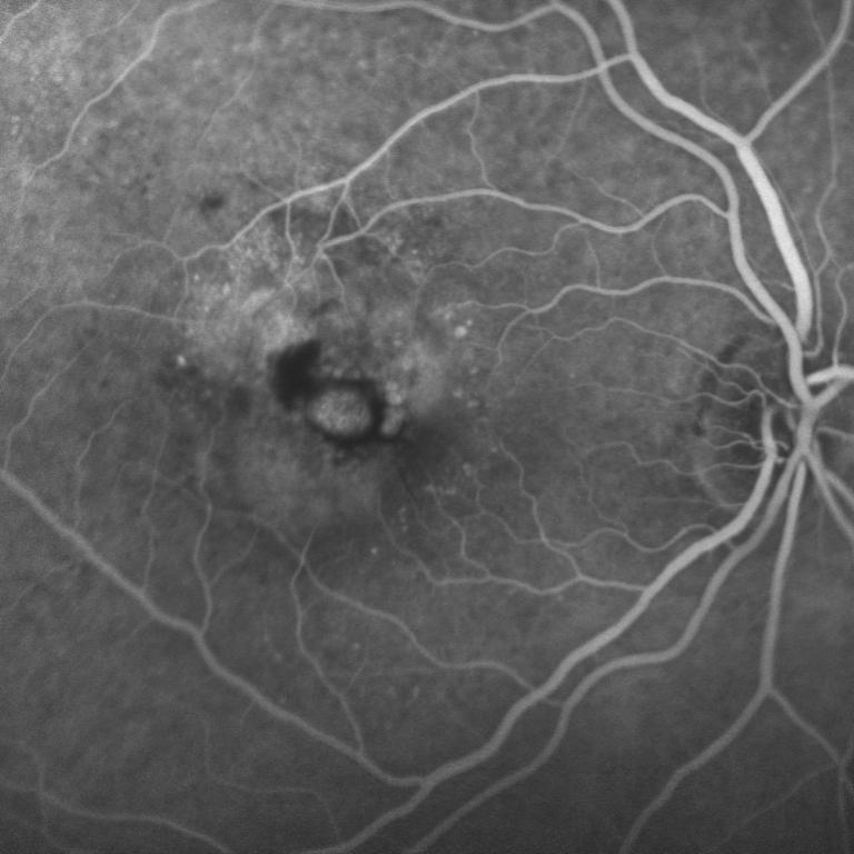 Figura 3 Fluorangiografia in paziente affetto da foro maculare