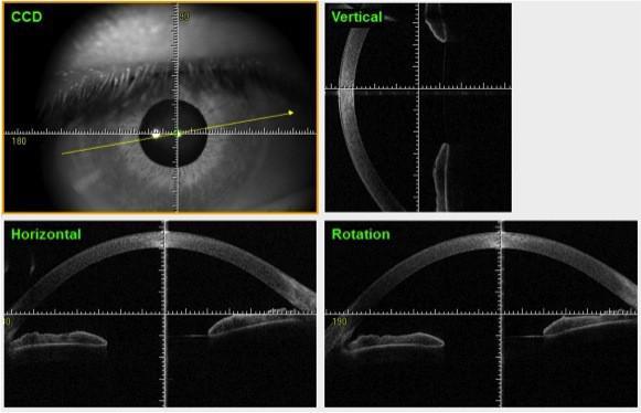 Figura 4 Tomografia corneale del segmento anteriore in paziente normale
