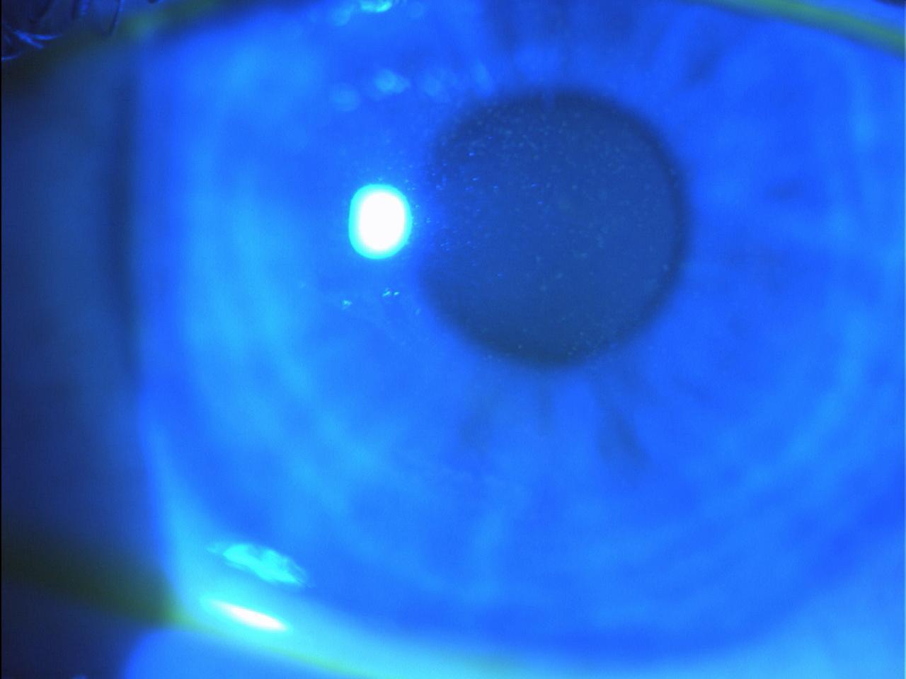 Figura 4 Cheratopatia puntata superficiale in paziente affetto da disfunzione del film lacrimale