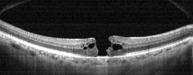 Figura 1 Scansione OCT del polo posteriore con evidenza di foro maculare a tutto spessore