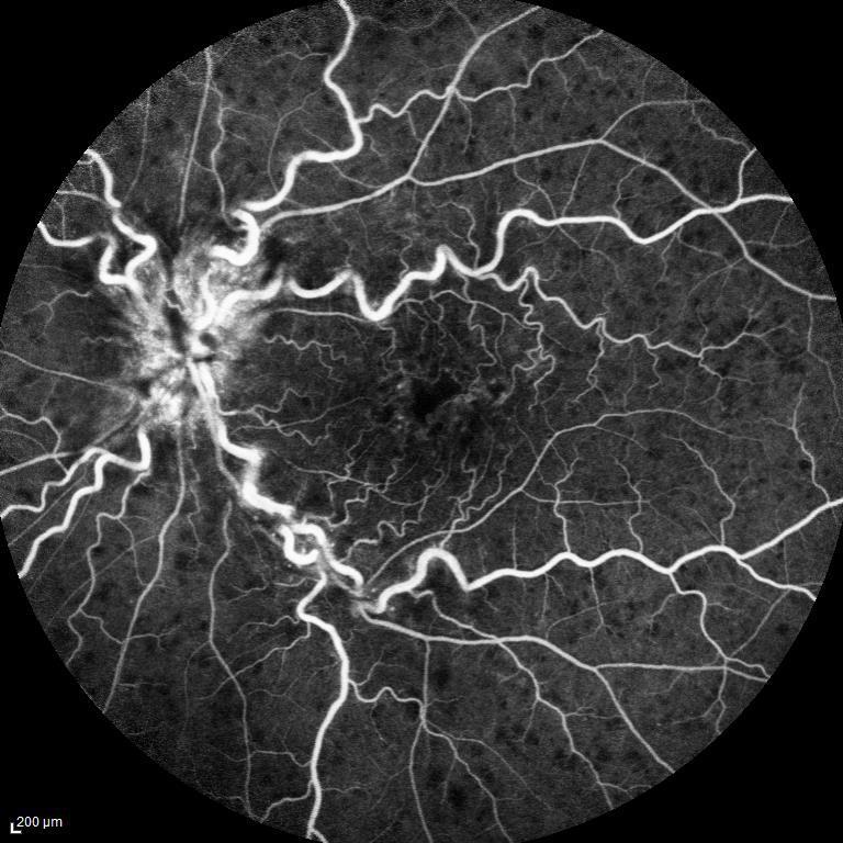 occlusioni venose retiniche Immagine fluorangiografica di CRVO con evidenza di dilatazione venosa, emorragie sparse ed edema maculare e della papilla ottica