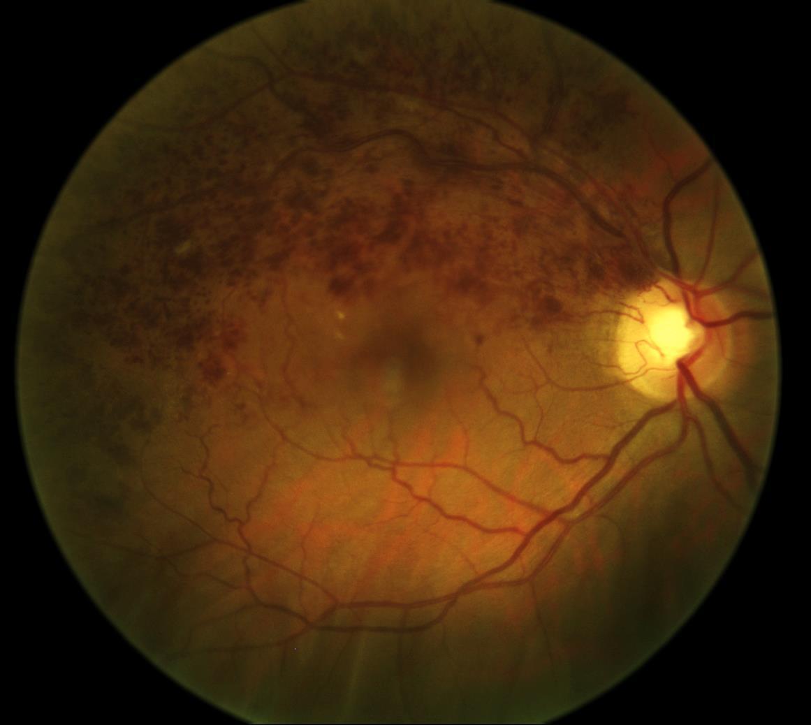 occlusioni venose retiniche Immagine del fondo oculare di BRVO con evidenza di emorragie lungo l'arcata temporale superiore