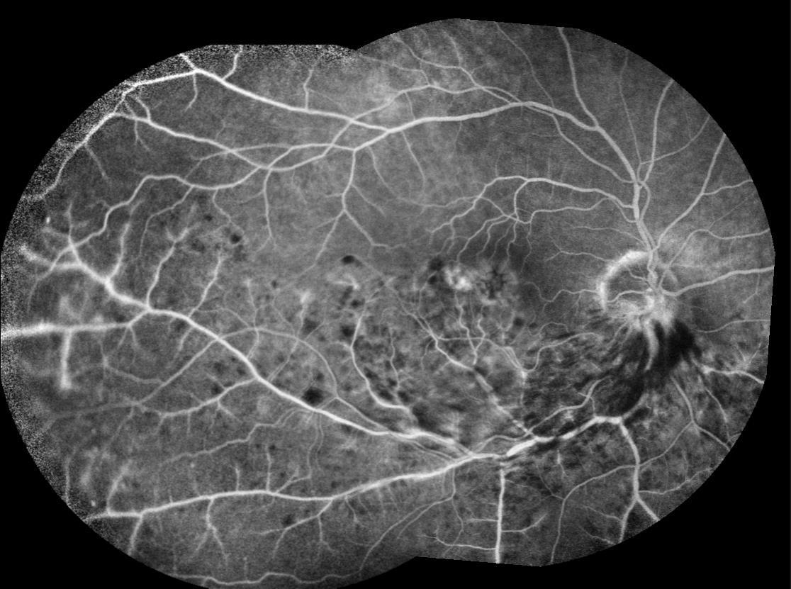 occlusioni venose retiniche Immagine fluorangiografica che evidenzia BRVO con aree di emorragia ed edema maculare