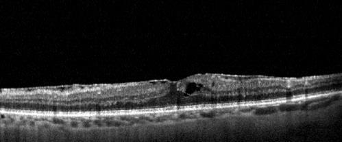 retina chirurgica Scansione OCT maculare con evidenza di membrana epiretinica ed iniziale edema intraretinico