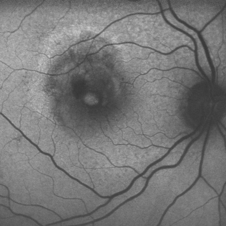 retina chirurgica Immagine in autofluorescenza di foro maculare