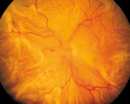 retina chirurgica Distacco di retina totale