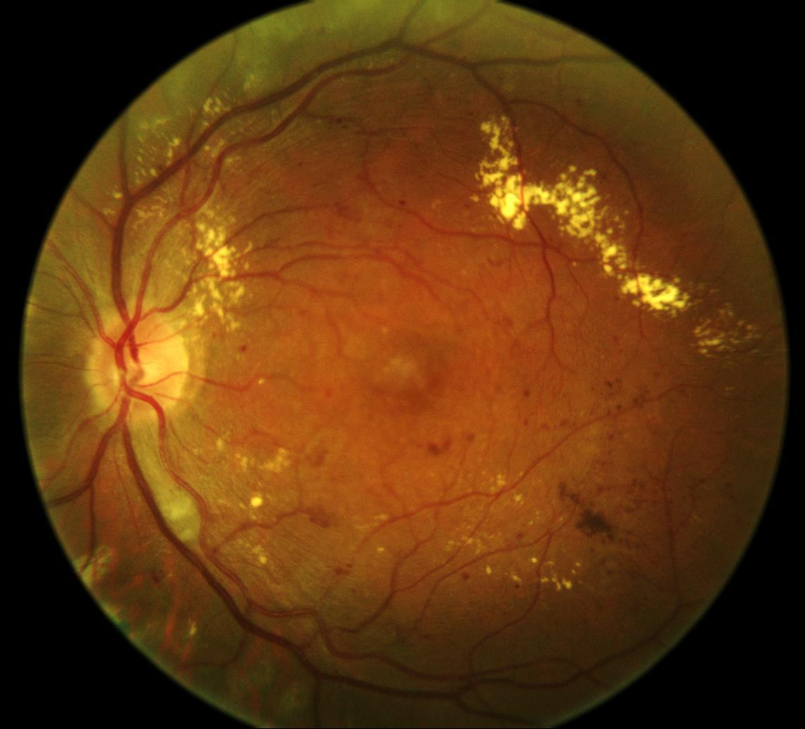 Retinopatia diabetica Immagine del fondo oculare che mostra microaneurismi, microemorragie ed essudati duri