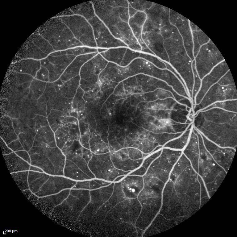 retinopatia diabetica Immagine fluorangiografica che evidenzia microaneurismi e piccole aree ischemiche