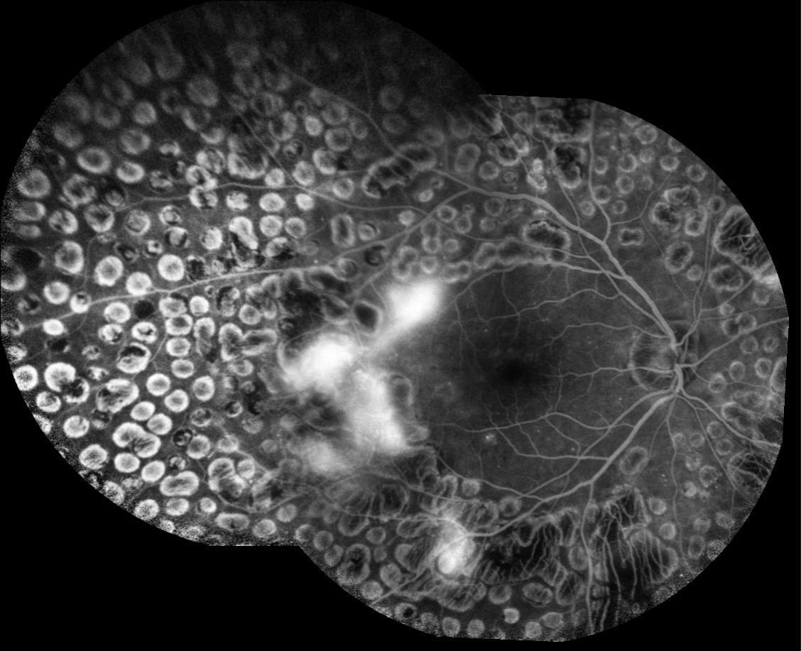 retinopatia diabetica Immagine fluorangiografica che evidenza esiti di trattamento laser panretinico e persistenza di neovasi