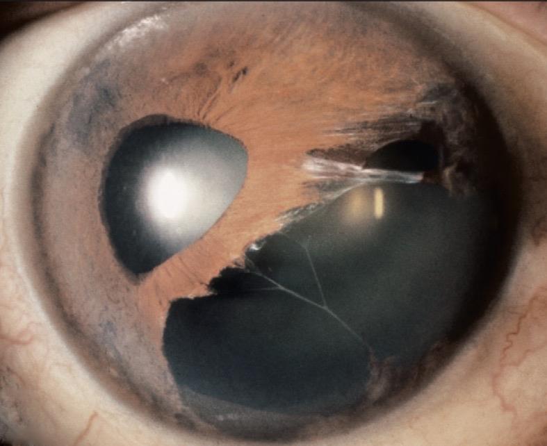 Sindrome irido-corneale con evidenza di edema corneale ed alterazioni dell'iride.
